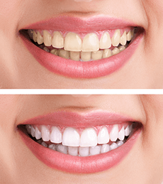 Teeth Whitening Vista Dental Care 92084